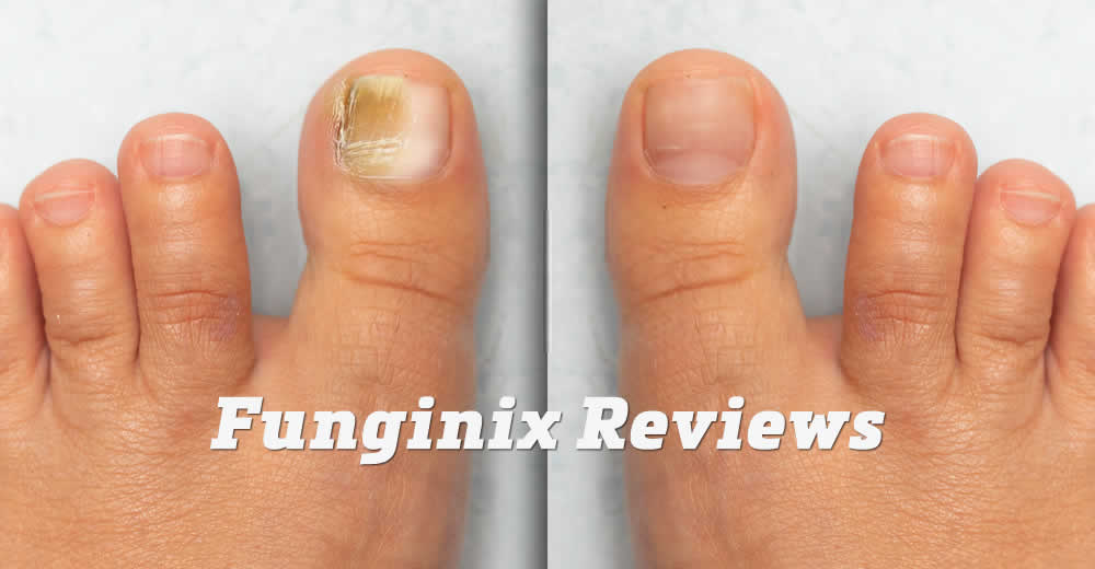 Lighter-Duty Versions- Effective Nail Fungus Treatment
